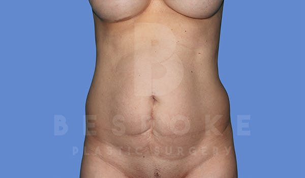 Tummy Tuck Gallery - Patient 4819904 - Image 1