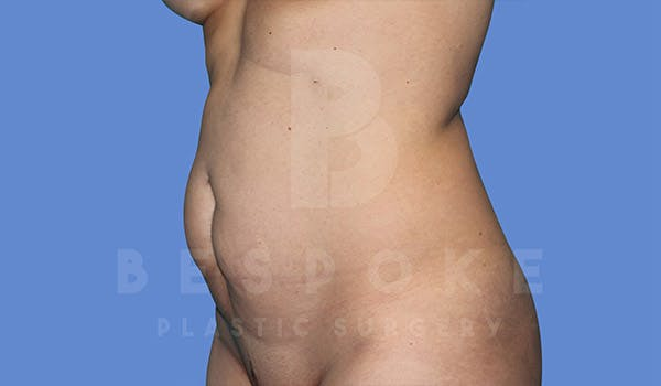 Tummy Tuck Gallery - Patient 4819904 - Image 3