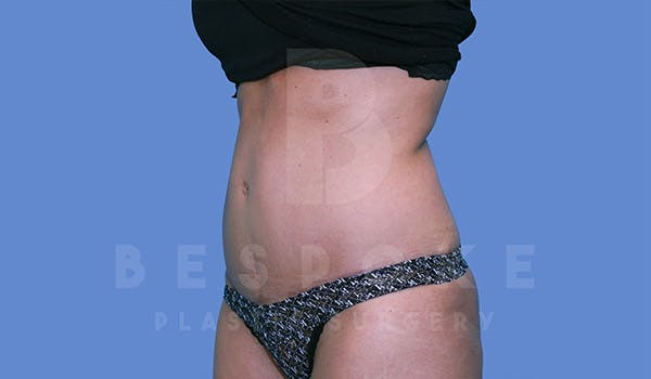 Tummy Tuck Gallery - Patient 4819904 - Image 4
