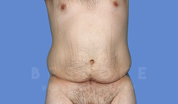 Massive Weight Loss Gallery - Patient 4819942 - Image 1