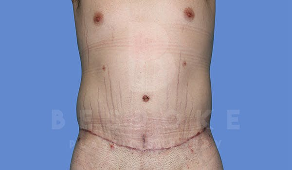 Massive Weight Loss Gallery - Patient 4819942 - Image 2