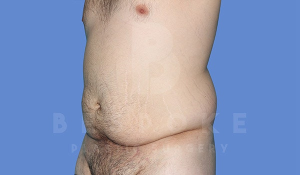 Massive Weight Loss Gallery - Patient 4819942 - Image 3