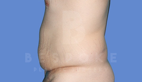 Massive Weight Loss Gallery - Patient 4819942 - Image 5