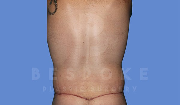 Massive Weight Loss Gallery - Patient 4819942 - Image 10