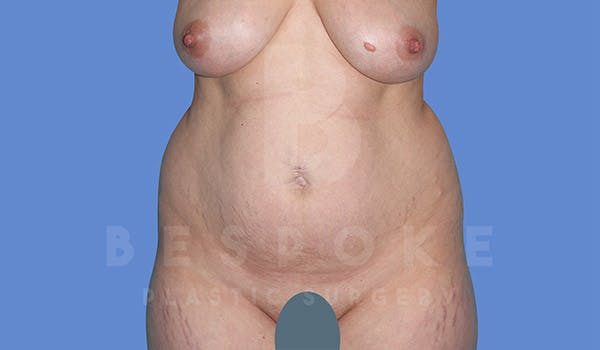 Mommy Makeover Gallery - Patient 4819983 - Image 3