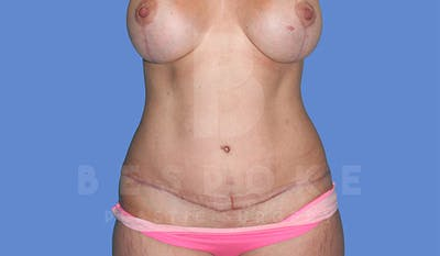 Mommy Makeover Gallery - Patient 4819983 - Image 4