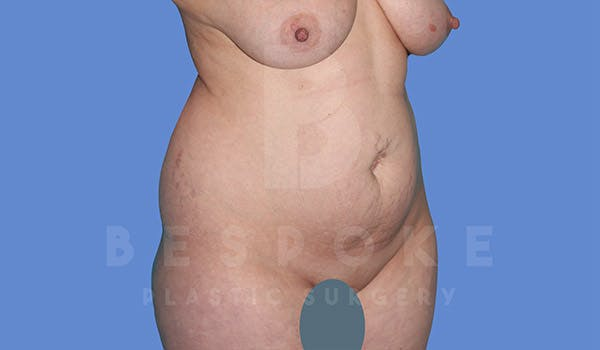 Mommy Makeover Gallery - Patient 4819983 - Image 9