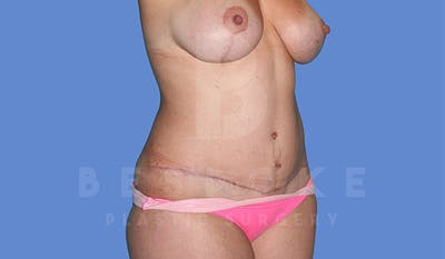 Mommy Makeover Gallery - Patient 4819983 - Image 10