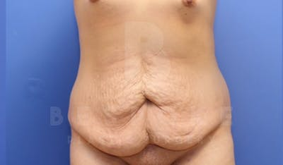 Tummy Tuck Gallery - Patient 4878087 - Image 1