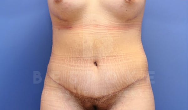 Tummy Tuck Gallery - Patient 4878087 - Image 2