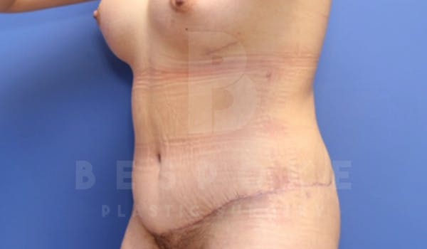 Tummy Tuck Gallery - Patient 4878087 - Image 4