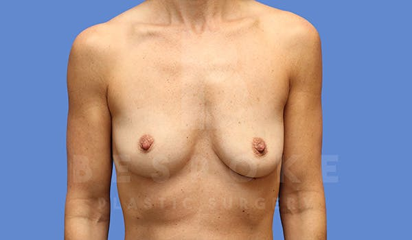Breast Augmentation Gallery - Patient 5040798 - Image 1