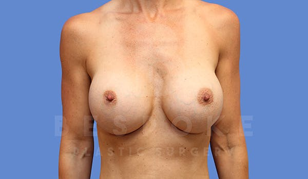Breast Augmentation Gallery - Patient 5040798 - Image 2