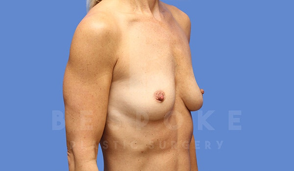 Breast Augmentation Gallery - Patient 5040798 - Image 3