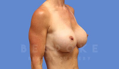 Breast Augmentation Gallery - Patient 5040798 - Image 4