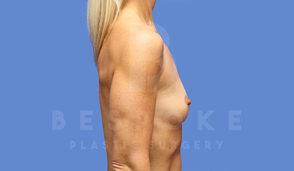 Breast Augmentation Gallery - Patient 5040798 - Image 5