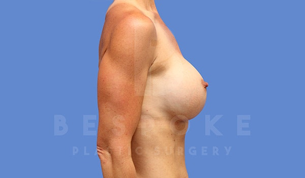 Breast Augmentation Gallery - Patient 5040798 - Image 6