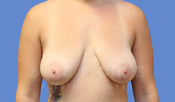 Breast Lift With Implants Gallery - Patient 5040799 - Image 8