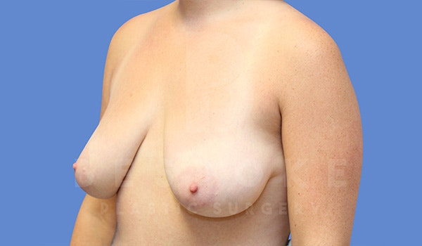 Breast Lift With Implants Gallery - Patient 5040799 - Image 3