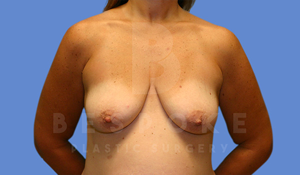 Breast Lift With Implants Gallery - Patient 5040801 - Image 9