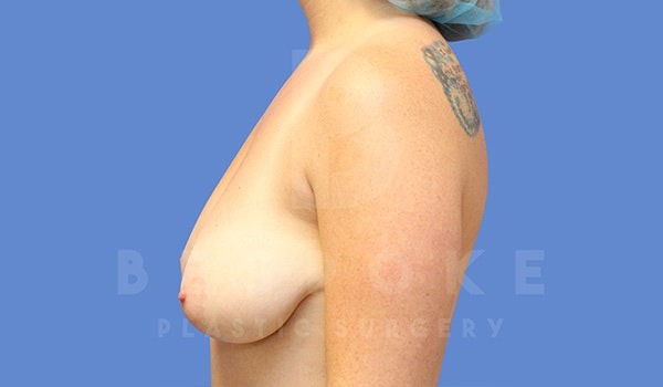 Breast Lift With Implants Gallery - Patient 5040799 - Image 5