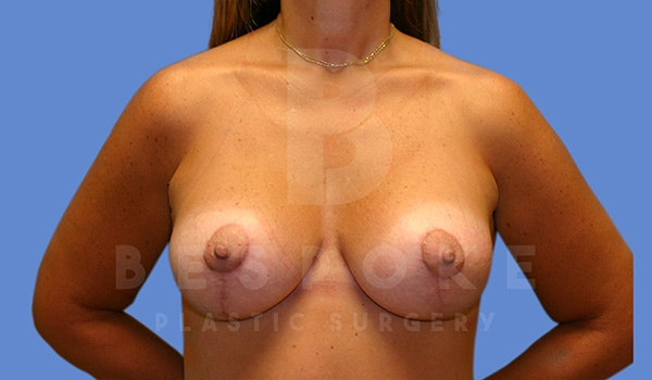 Breast Lift With Implants Gallery - Patient 5040801 - Image 2
