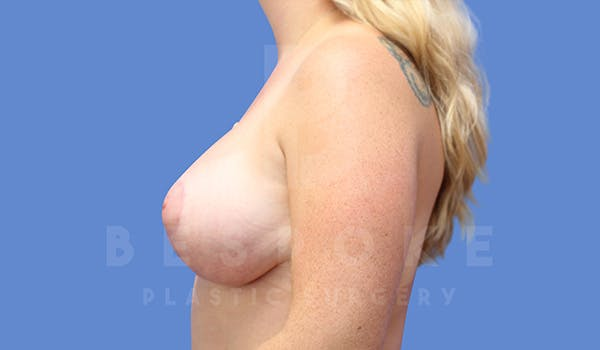 Breast Lift With Implants Gallery - Patient 5040799 - Image 6