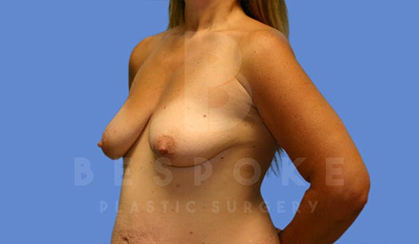 Breast Lift With Implants Gallery - Patient 5040801 - Image 3