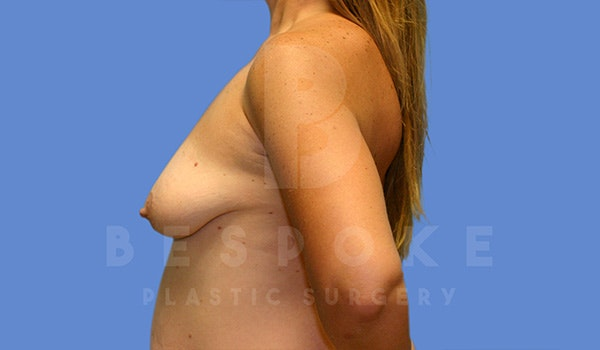 Breast Lift With Implants Gallery - Patient 5040801 - Image 5