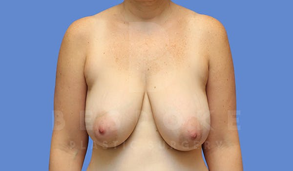 Breast Lift Gallery - Patient 5040805 - Image 1