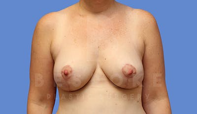 Breast Lift Gallery - Patient 5040805 - Image 2
