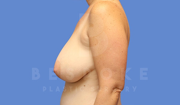Breast Lift Gallery - Patient 5040805 - Image 5