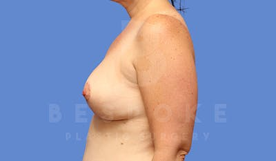 Breast Lift Gallery - Patient 5040805 - Image 6
