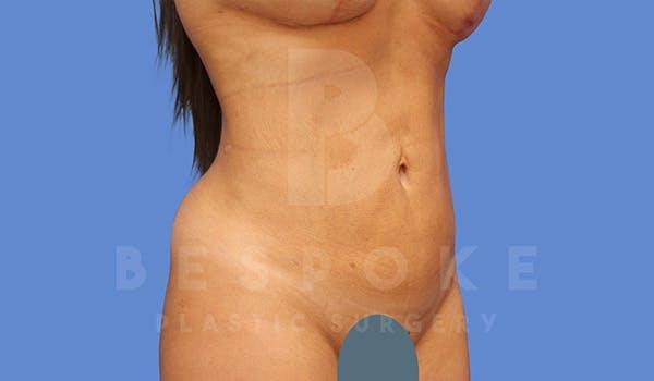 High Def Lipo Gallery - Patient 5040806 - Image 2