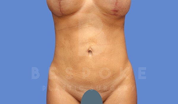 High Def Lipo Gallery - Patient 5040806 - Image 4