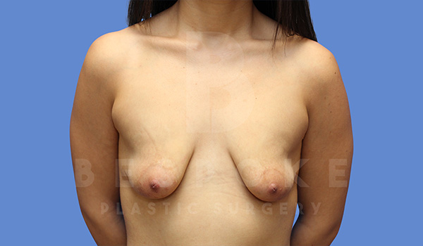 Mommy Makeover Gallery - Patient 5040810 - Image 12