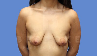 Mommy Makeover Gallery - Patient 5040810 - Image 1