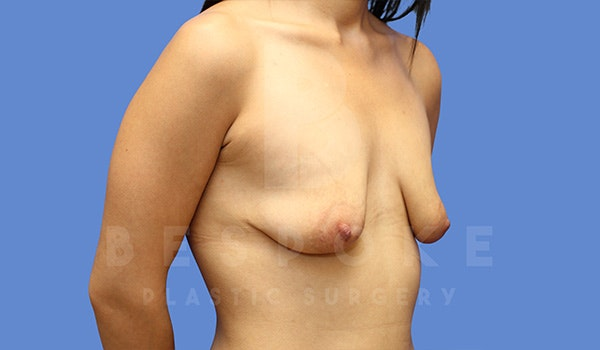 Mommy Makeover Gallery - Patient 5040810 - Image 3