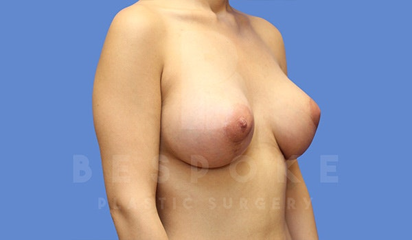Mommy Makeover Gallery - Patient 5040810 - Image 4