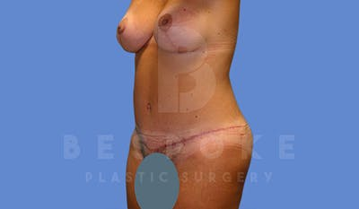 Mommy Makeover Gallery - Patient 5040809 - Image 8