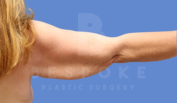 Massive Weight Loss Gallery - Patient 5040811 - Image 1