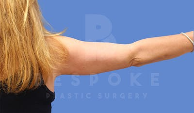 Massive Weight Loss Gallery - Patient 5040811 - Image 2