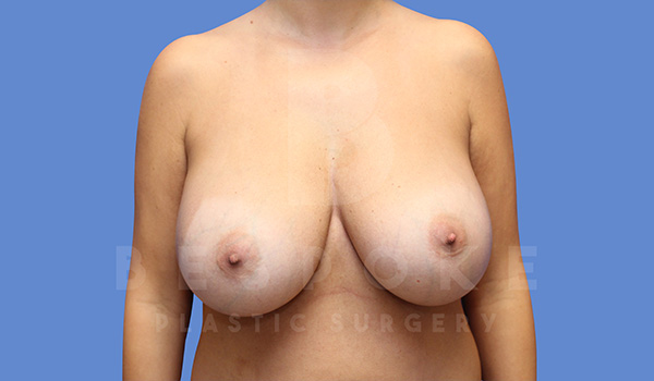 Breast Revision Surgery Gallery - Patient 5040824 - Image 7