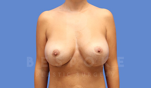Breast Revision Surgery Gallery - Patient 5040824 - Image 2