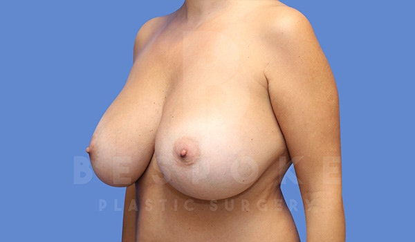 Breast Revision Surgery Gallery - Patient 5040824 - Image 3