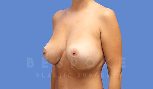Breast Revision Surgery Gallery - Patient 5040824 - Image 4