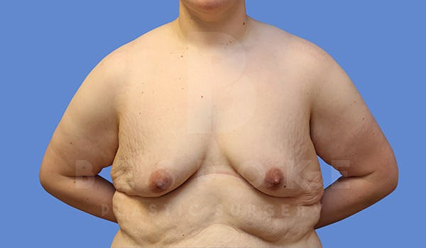 Breast Lift With Implants Gallery - Patient 5089516 - Image 1