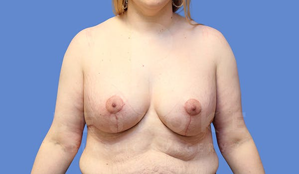 Breast Lift With Implants Gallery - Patient 5089516 - Image 2