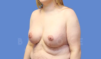 Breast Lift With Implants Gallery - Patient 5089516 - Image 4