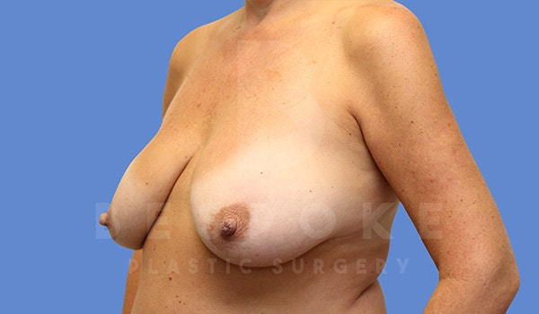 Breast Lift With Implants Gallery - Patient 5089517 - Image 1